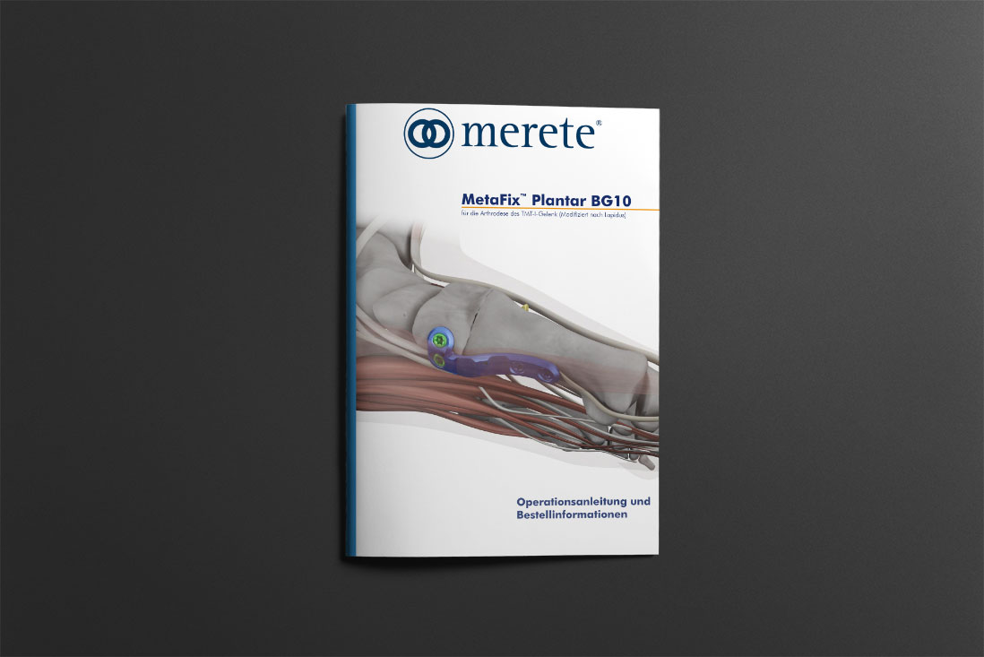 MetaFix™ Plantar BG10 Surgical Technique
